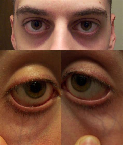 black under eye what causes dark circles under eyes