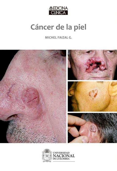 cancer de piel cancer en la piel pictures to pin on pinterest pinsdaddy