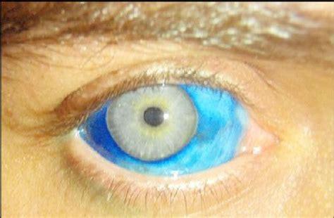 eyeball tattoo in usa eyeball tattoo beware of the new trend from usa micro
