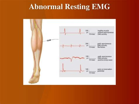 interference pattern analysis emg neurophysiological investigations