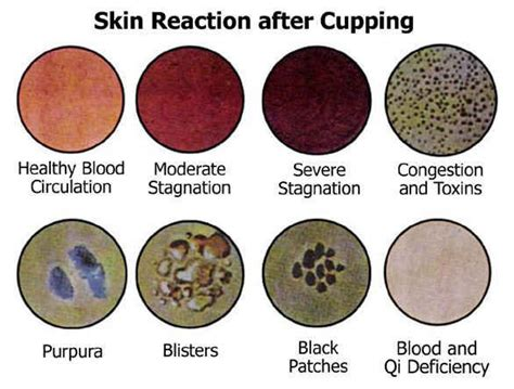 Suction Cup Detox by Skin Reactions After Cupping And Alternative