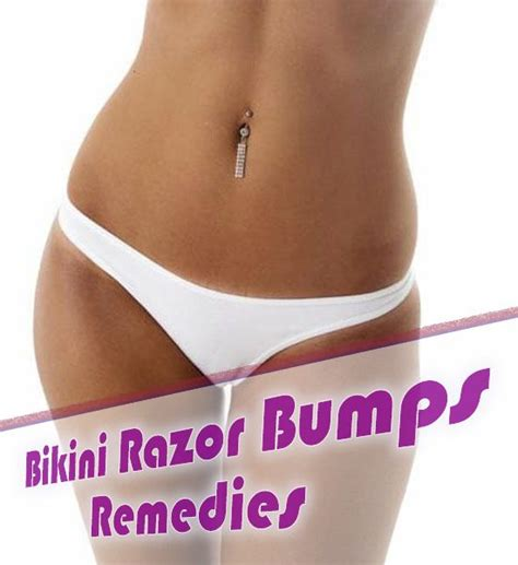 overnight treatments for razor bumps with pictures ehow 5 easy home remedies to get rid of razor burn razor burns