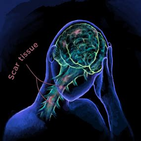 multiple c sections scar tissue 11 pictures of multiple sclerosis how ms affects your brain