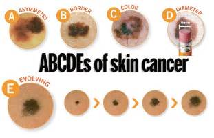 skin cancer color dermatologists urge to learn the abcdes of skin