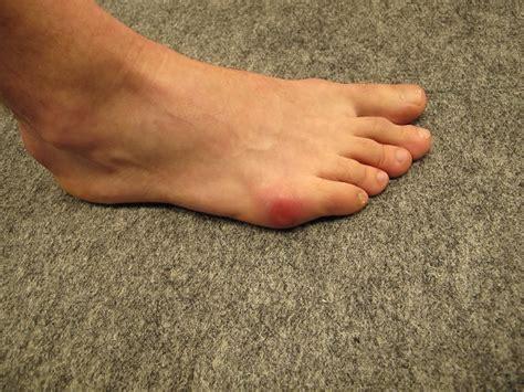 le sur pieds mal 224 l avant pieds dans chaussures de ski