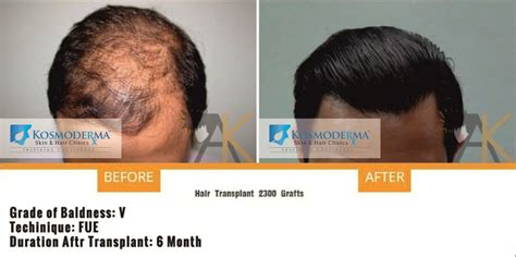 new hair restoration techniques hair transplant