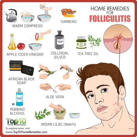 home remedies for folliculitis top 10 home remedies