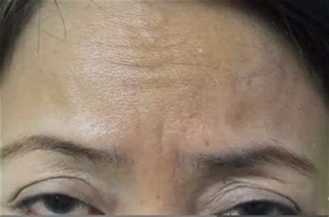 coverage for fine line on forehead belotero for frown lines forehead before and after