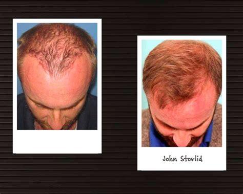 dhi hair transplant reviews dhi direct hair implantation hair loss clinic in