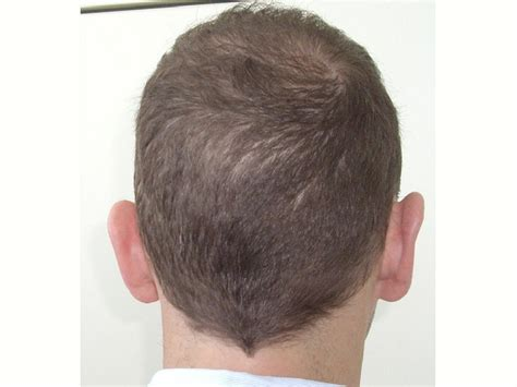 hate hair after surgery 2015 hate hair after surgery 2015 photos of hair transplant