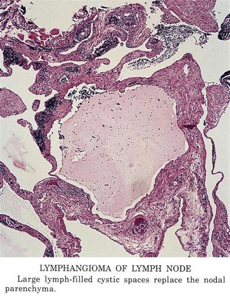 Lymphangioma Circumscriptum Pathology Outlines by Pathology Outlines Lymphangioma