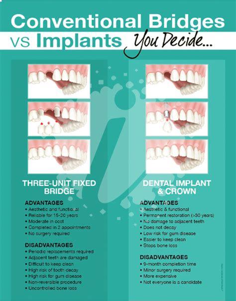 printable dental poster implant dental posters identity namebrands inc