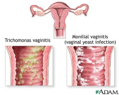 yeast infection sea buckthorn yeast infection information
