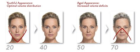 what face shape ages best vivelift 174 in salt lake city utah facial plastics