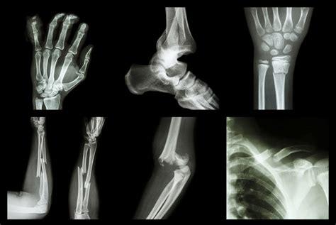 Search Broken Quicker Healing Of Broken Bones Search Engine At Search