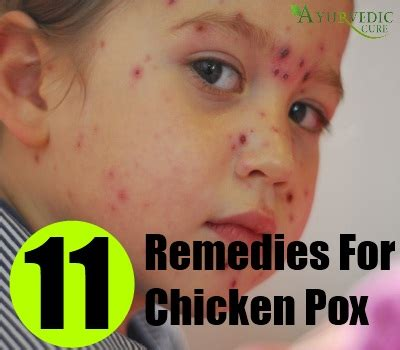 easy home remedies for chicken pox treatments