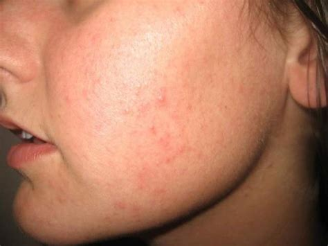 has bumps on skin bumps on my dorothee padraig south west skin health care