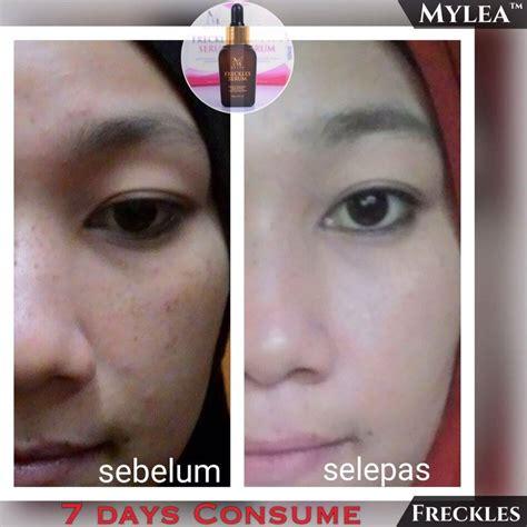 mylea skincare mylea freckles serum serum anti jeragat