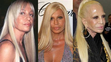How To Smell Like Donatella Versace by Donatella Versace Plastic Surgery Before And After