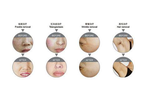 Alat Makeup Silky jual ipl alat untuk