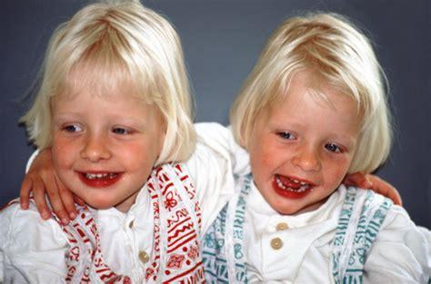 gemelli monozigoti diversi i gemelli monozigoti tutto mamma