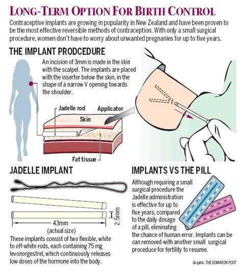 How Does It Take Detox Pills To Work by Sciblogs How The Contraceptive Implant Works Infographic