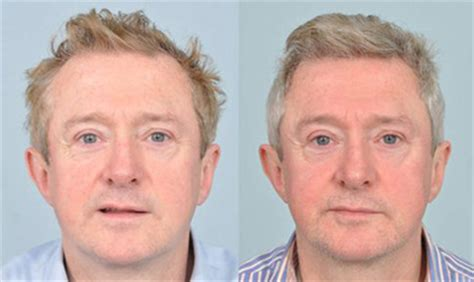 hair transplant cost 2014 hair transplant clinic uk hair replacement surgery hair