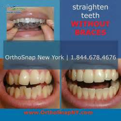 25 best ideas about teeth straightening on