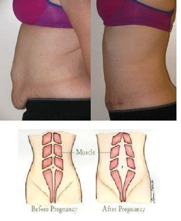 28 best panniculectomy images on makeover plastic surgery and tummy tucks