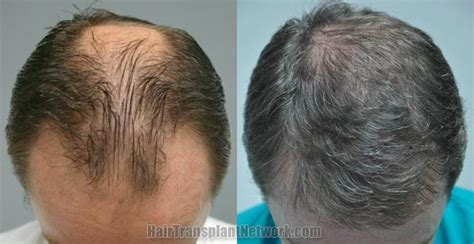 Best Type Of Hair Transplant by Hair Transplant Sessions 1 Grafts 3883 Total Hairs 8270