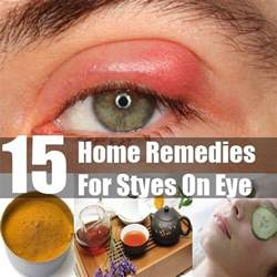 top 15 home remedies for styes on eye diy find home remedies