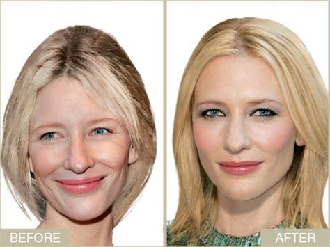 cate blanchett plastic surgery before and after 2018 plastic surgery before and after