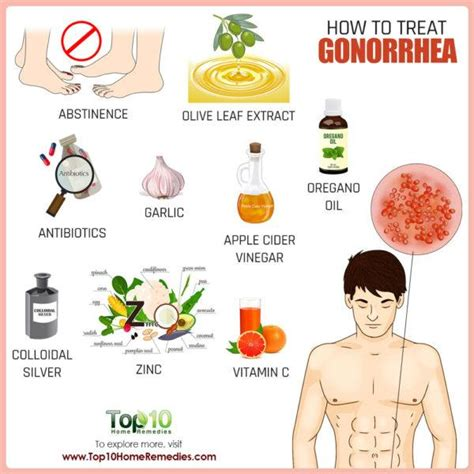 how to deal with gonorrhea top 10 home remedies