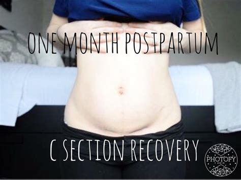 one month after c section one month postpartum update and belly shot c section