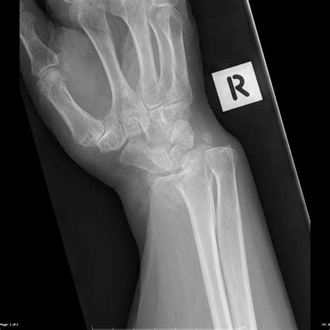 reverse barton fracture image radiopaediaorg