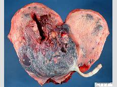 gravid uterus - Humpath.com - Human pathology Real Ovaries