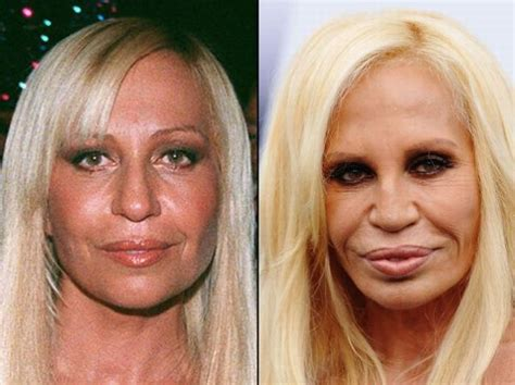 Designer Cosmetic Surgery Craze Newsvine Fashion 3 by Before And After A Plastic Surgery 21 Pics