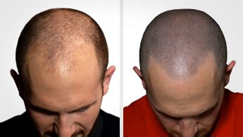 hair tattoo cost uk scalp micropigmentation from the world leaders scalp clinic