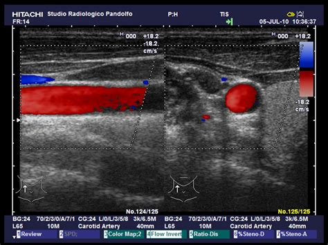 ecodoppler vasi spermatici eco color doppler studio radiologico pandolfo