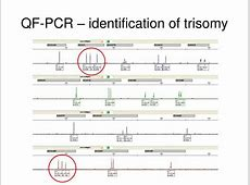 PPT - Molecular cytogenetic practical PowerPoint ... Y Chromosome Microdeletion