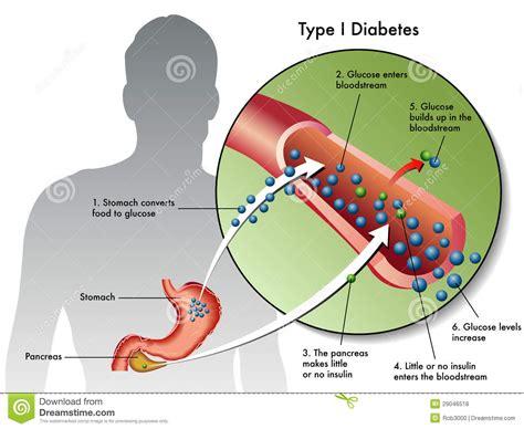 photographer type 1 type 1 diabetes stock photo image of blood cells