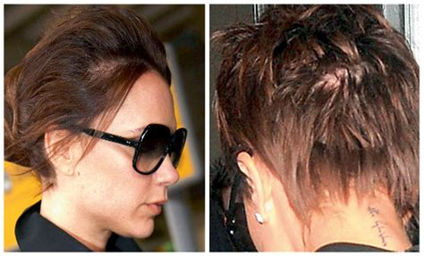 how are female celebrities dealing with thinning asg ing hair hair today gone tomorrow dealing with hair loss