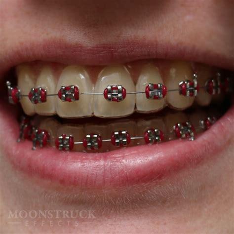 braces colors for teeth anwen braces teeth moonstruck effects