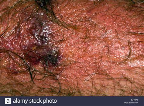 up macro poison rash blisters on human skin stock photo royalty free image 124345749 poison rash stock photos poison rash stock images alamy