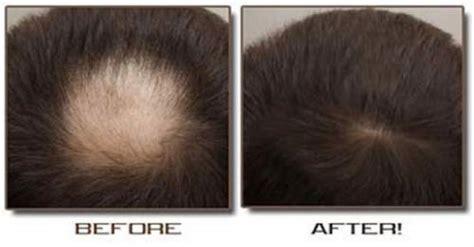 sulfur to grow hair bald spot diy homemade onion juice and honey hair loss treatment