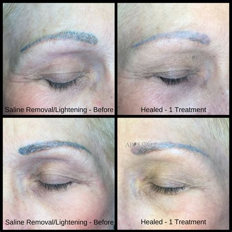 saline eyebrow tattoo removal permanent makeup correction style guru fashion glitz