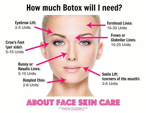 botox treatment everything what you expect common