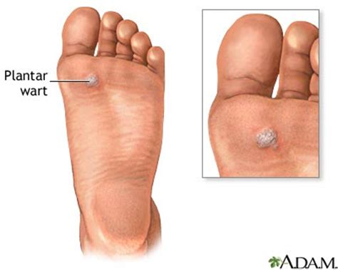 How Do You Get Planters Warts On Your by Findlay Foot Facts What Are Plantar Warts And How Do You