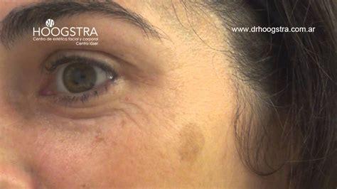 imagenes de manchas oscuras en la cara manchas oscuras de la cara tratamiento con l 225 ser helios