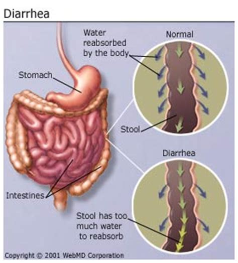 diarrhea causes infection ibs colitis more